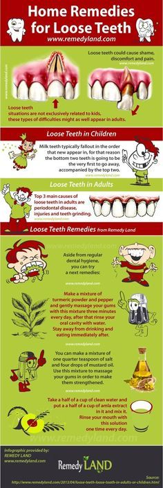 Loose teeth remedies #looseteeth #remedies http://www.remedyland.com/2013/04/loose-teeth-loose-tooth-in-adults-or-children.html