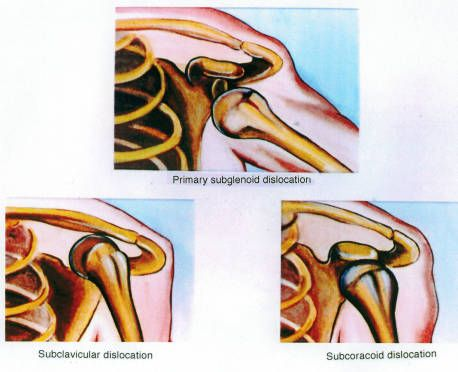 Series of illustrations of the left glenohumeral joint, anterior view, showing the relationships between major bone structures in subclavicular, primary subglenoid, and subcoracoid dislocations :: Orthopaedic Surgical Anatomy Teaching Collection