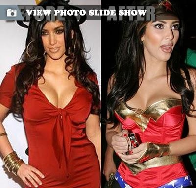 Kim Kardashian plastic surgery This makes more sense... no wonder she doesn't look much like her sisters...