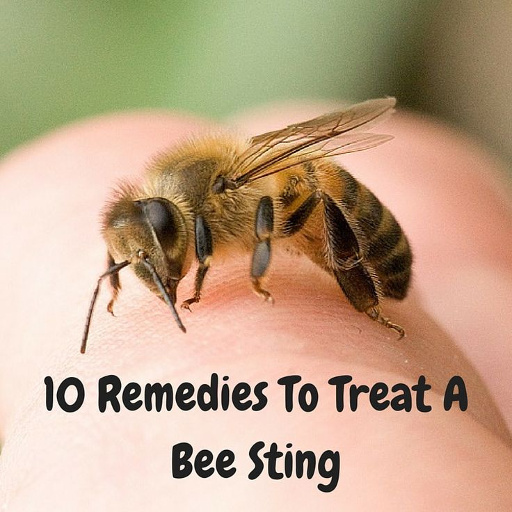 Follow these natural remedies to treat a bee sting effectively. Take a look.