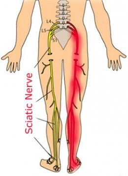 Sciatic nerve pain relief - home & natural remedies