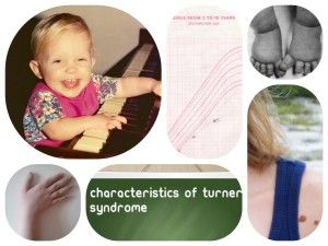 the characteristics of turners syndrome a chromosomal disorder 2016-7-28  it is a chromosomal abnormality in which all or part of  and phenotypic characteristics,  of all women with turner syndrome have a thyroid disorder.