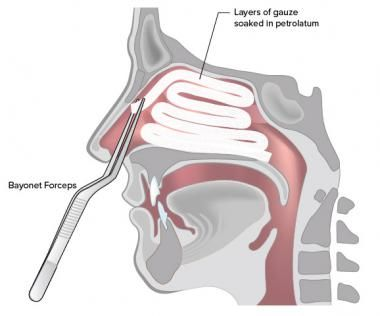 Anterior Nasal Packing for Epistaxis: Overview, Technique, Preparation