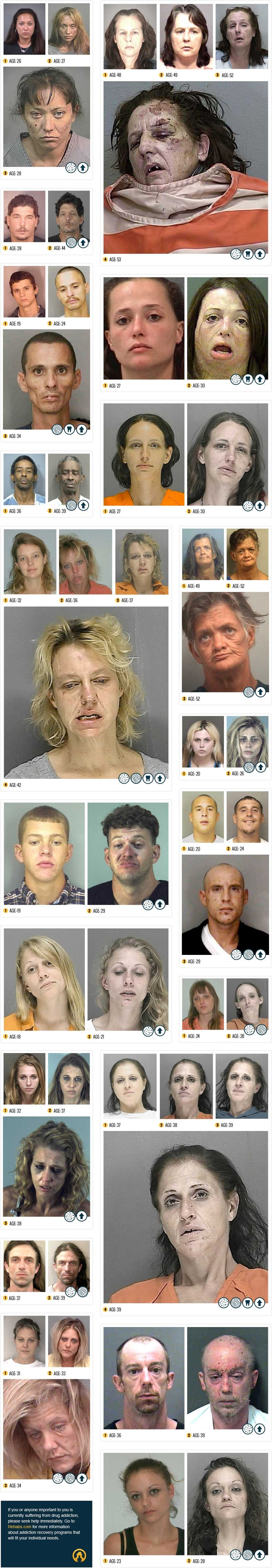 Before & After Drugs | Real Life Infographic Depicting the Destructive Power of Meth Ok guys these are bad pictures but they are the truth. This stuff is poison. PLEASE don't even try it because is locks onto you. We all deserve better than this. Don't do it to yourself