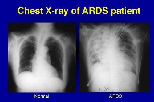 ARDS, or acute respiratory distress syndrome, is a lung condition that leads to low oxygen levels in the blood. It can be life threatening. ARDS usually occurs in people who are very ill with another disease or who have major injuries. Most people are already in the hospital when they develop ARDS. In ARDS an infection causes the lung's capillaries to leak more fluid than normal into the alveoli. This prevents the lungs from filling with air and moving enough oxygen into the bloodst