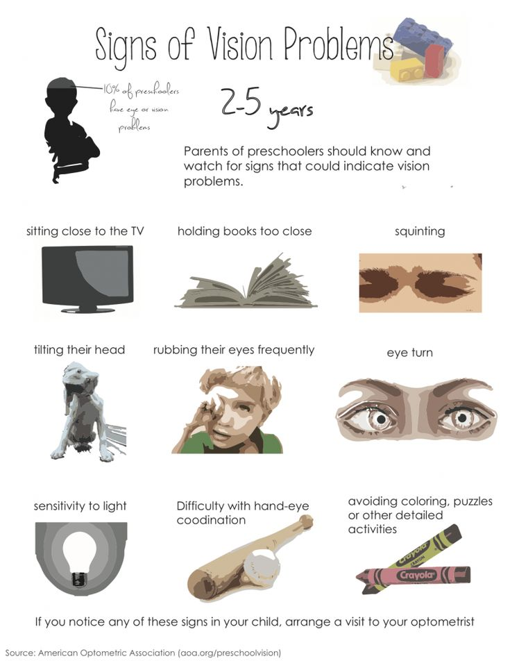 Best 88 Eye Health images on Pinterest | Health and fitness