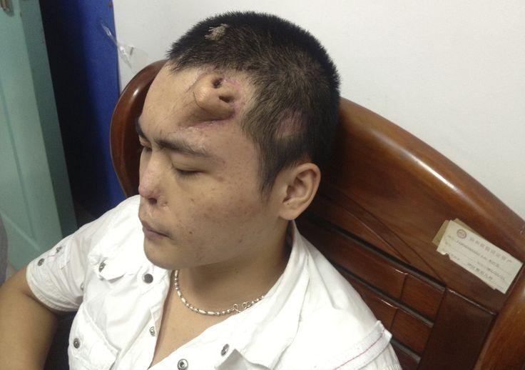 PHOTO. Chirurgie du nez: ils lui ont fait pousser le sien sur le front
