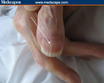 Examining the Fingernails When Evaluating Presenting Symptoms in Elderly Patients