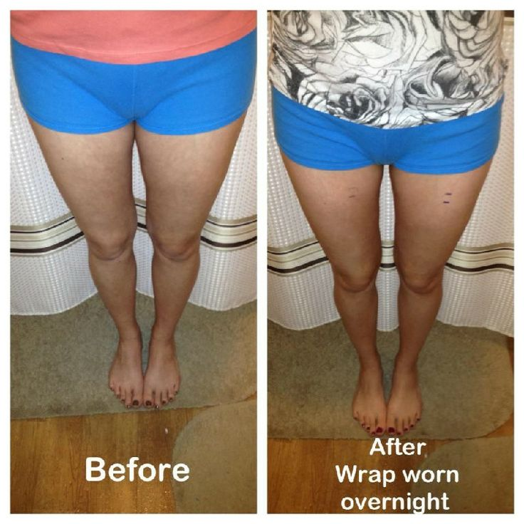 #Thighs rubbing together? This #wrap can easily remedy that problem. Results in as little as 45 minutes; progressive #results complete after 72 hrs.  (These are my actual #pictures of my results).