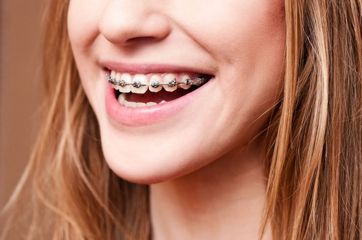 Healthy snack ideas for people with braces appetizers