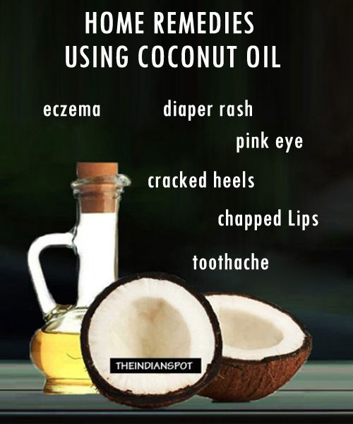 Coconut oil is rich in vitamins and minerals and that is why it is a miracle oil. It's been used since ages for beauty and health benefits. It acts as a perfect skin moisturizer and ideal for dry hair. Here are top-10 home remedies using coconut oil which are useful in day to day life.