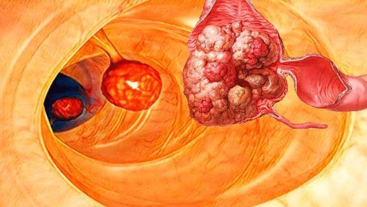 Síntomas y tratamiento casero que puede ayudarnos a combatir el cáncer de colon
