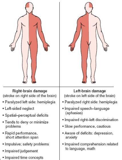 cerebrovascular accident cva right vs left damage mind