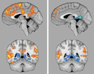 The Next Hot Topic In Autism Research >> Compared With Placebo Right Oxytocin Boosts Brain Activity Left