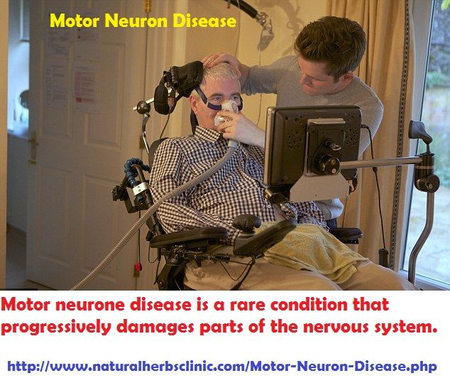In order to rightly identify the disorder it is important to look at the signs and symptoms so that the most accurate treatment option is suggested. In order to do so thesymptoms of Motor Neuron Diseaseare important.... http://www.naturalherbsclinic.com/symptoms-of-motor-neuron-disease
