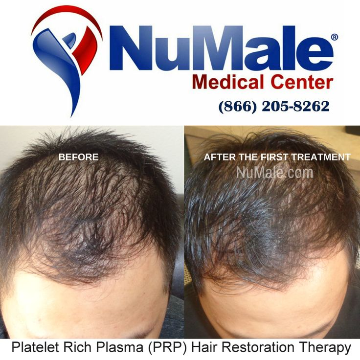 Platelet Rich Plasma (PRP) Hair Restoration Therapy. . Use Your Body's Own Plasma (Organic) Fast Results Affordable and Cost Effective No Scarring  No Medications . Schedule Your Consultation  (866) 205-8262 . . . . . . . #HairLoss #HairGrowth #Alopecia #ThinningHair #Balding #BaldSpots #HairTransplant #HairRestoration #HairReplacement #ThinHair #Hair #ThickHair #HairDoctor #CurlyHair #StraightHair #BlondHair #Brunette #PRP #MensClinic