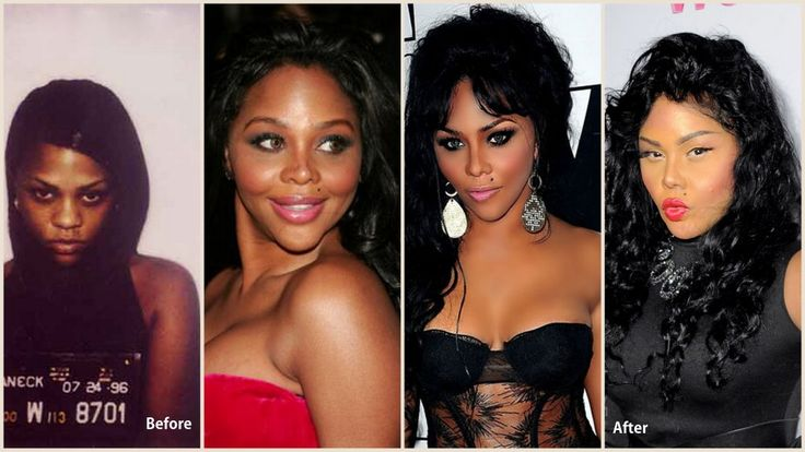 Lil Kim Plastic Surgery Before and After Photos --- seriously!! you should of just stopped why your ahead!! You don't even look the same!
