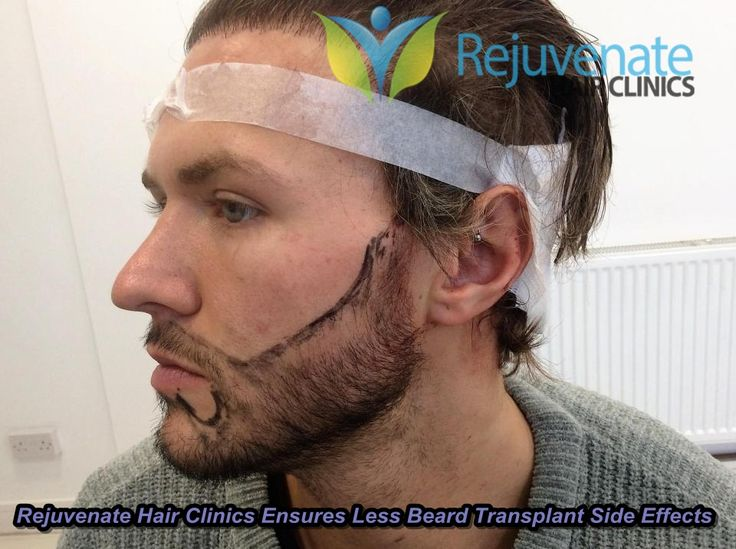UK' s best Rejuvenate Hair Clinics offers pain-free beard transplant. Plus no side effects are there, and you will get a scar free a real natural looking beard.
