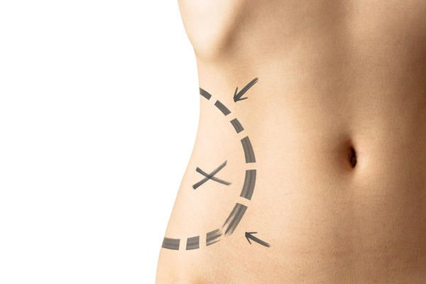 The advantages Of Tumescent Liposuction