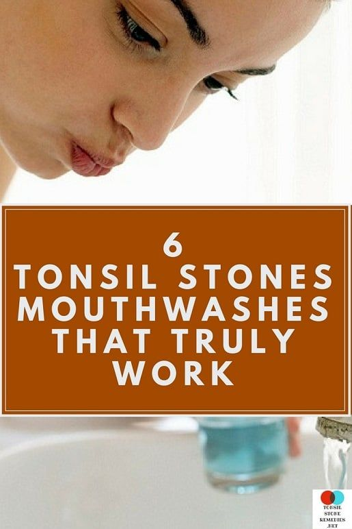 Mouthwash for Tonsil stones: The 6 Best ones that truly work
