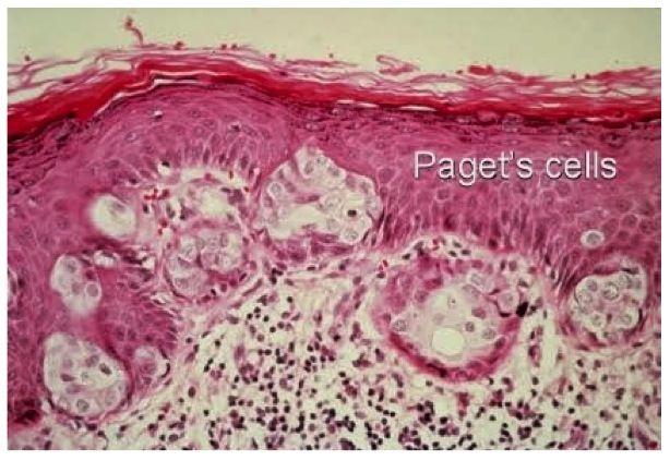 Malignant Phyllodes Tumor (Cystosarcoma Phyllodes)