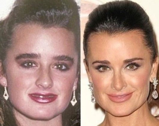 Kyle Richards Rhinoplasty Photo Before and After - http://www.celeb-surgery.com/kyle-richards-rhinoplasty-photo-before-and-after/?Pinterest