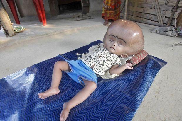 Roona Begum urodziła się w małej wiosce w Indiach z poważną chorobą - wodogłowiem. Jedynym ratunkiem były dla niej kosztowne operacje, na które rodzice nie mieli pieniędzy.
