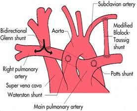 Blalock Shunt Procedure | Society Of Pediatric Cardiovascular Nurses - Registration