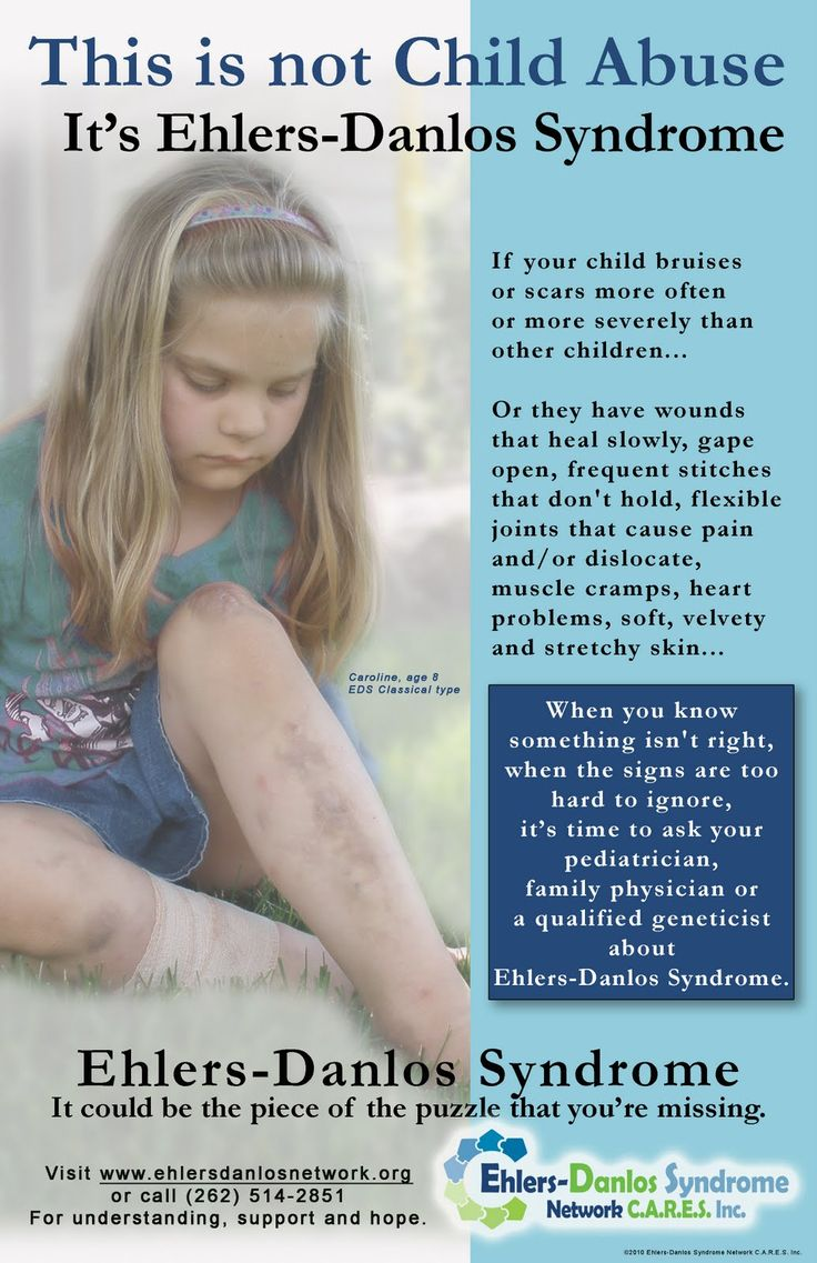 our series of poster children are designed to put a face with ehlers danlos syndrome - Pediatrician Description