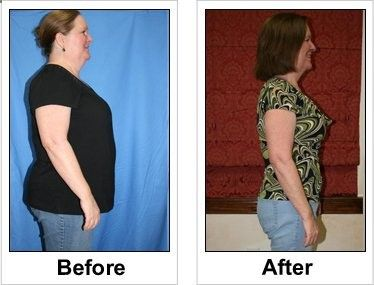 Full Gallery at : Weight Loss Before/After Set 9 www.revitol.com/...