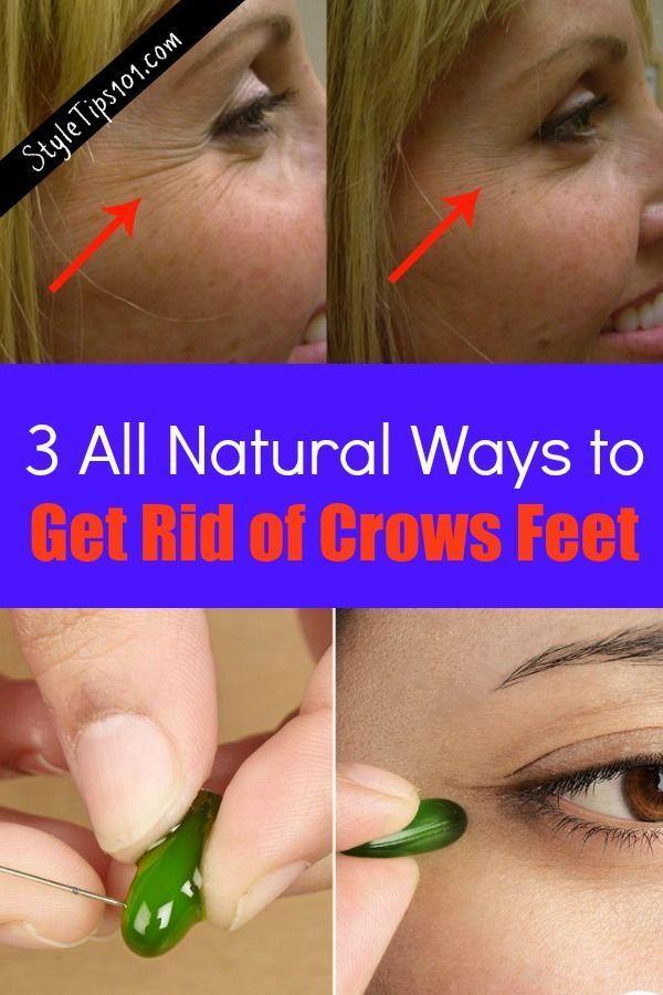 a51abb21a4c91a7584f8c55b795d9132 - How To Get Rid Of Eye Wrinkles And Crow S Feet