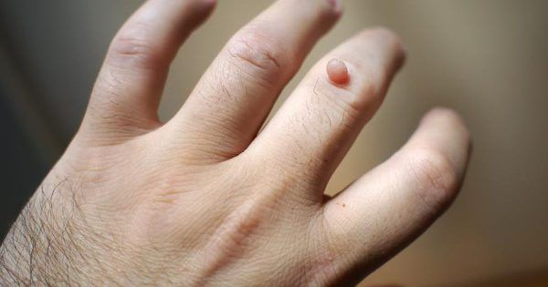 15 Simple Home Remedies to Get Rid of Warts Naturally