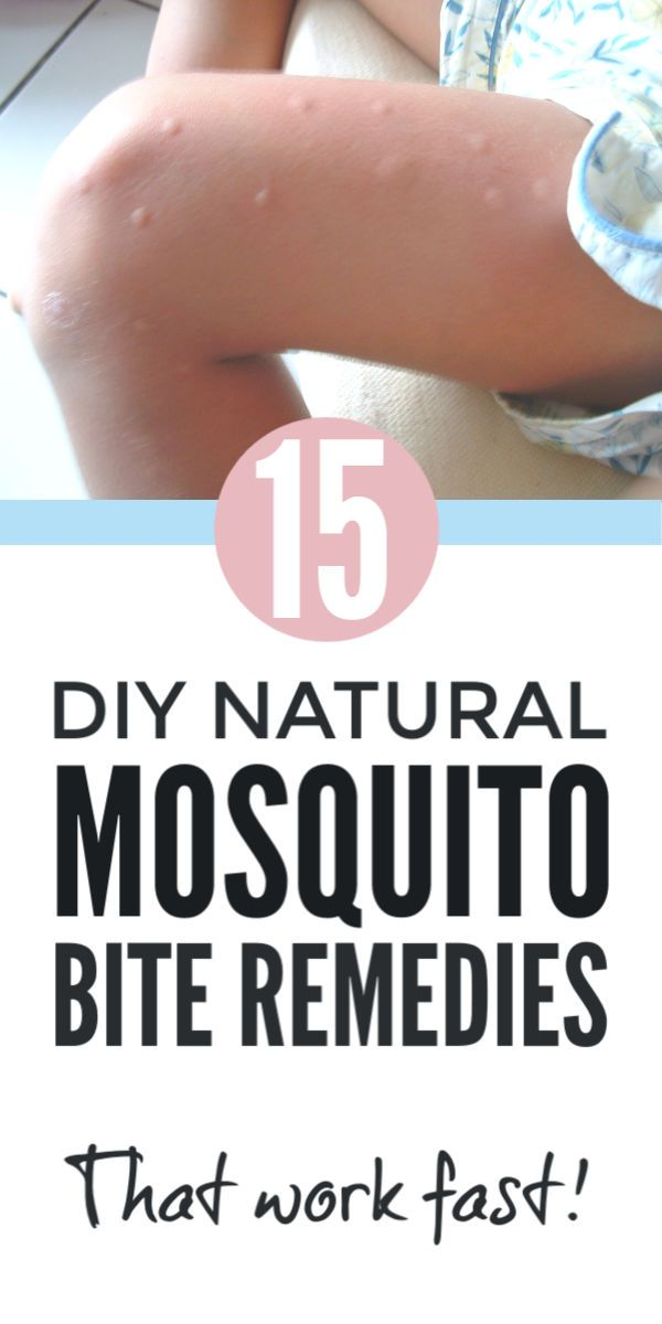 Bug Bites Mosquito Bite Bug Bite Relief Remedies For Mosquito Bites