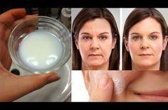 Αντίο μπότοξ: Η μάσκα που θα σε δείξει 10 χρόνια νεότερη φτιάχνεται με μόλις 3 συστατικά