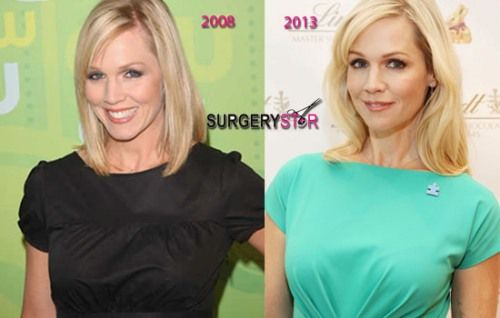 Jennie Garth Plastic Surgery Before and After Pictures are and reasons are written here so that you can make a…