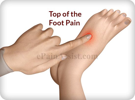 Top of the Foot Pain: Treatment, Exercises, Causes, Symptoms