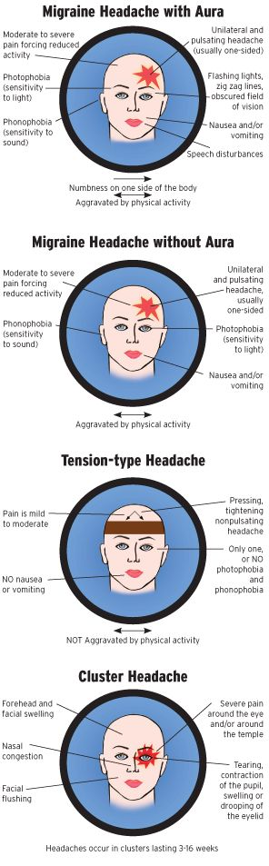 Types of Headaches - a chart to help you understand yours better  #headache #migraine #pain