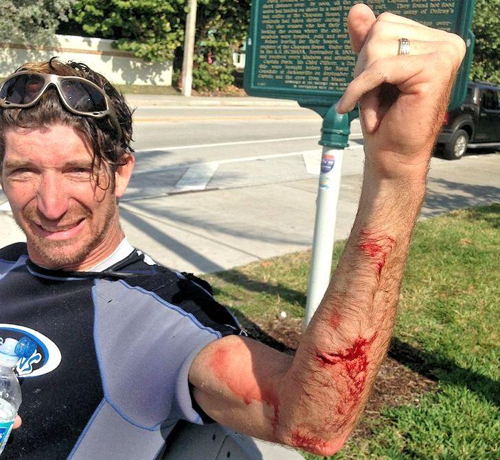 Kitesurfer #Shark Attack in Florida