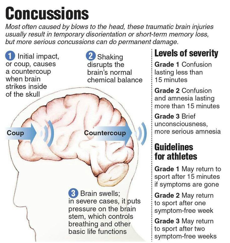 Concussions I'm a grade 2 ;( Here to my health Pinterest
