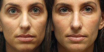 Finger Facial Acupressure Approach: Age-Regression Face Aerobics Exercises To Appear Younger
