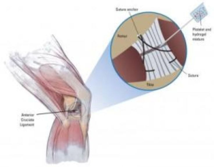 A report in the Journal of Orthopaedic Research suggests a better way to repair tears to the anterior cruciate ligament (ACL), a knee injury suffered by more than 100,000 Americans each year, particularly girls. Hospital Boston surgeon Martha Murray, MD reports that a collagen gel, enriched with blood platelets, can stimulate natural healing of a partial ACL tear, encouraging the body's cells to fill in the defect and restore mechanical strength to the ligament.