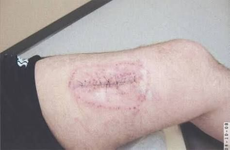 If you do end up with skin cancer you can be left with life long scars and marks as you will have had lots of skin removed and things ripped out of your body rue to all the surgery you will need.