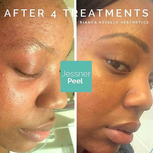 Black skin care - client after 4 professional grade Jessner skin peels containing #LacticAcid, #Resorcinol and #SalicylicAcid - check out our website link for more excellent results! #BEAskin #London