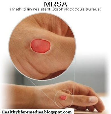 How to Cure a MRSA Infection