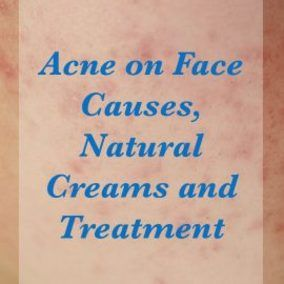 Homemade Acne Treatment - Various Laser Acne Treatment Procedures -- For more information, visit image link. #mrblanc