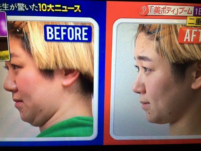 方法 解消 重 二 顎
