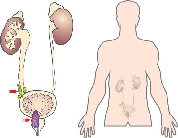 Рак простаты чаще метастазирует в