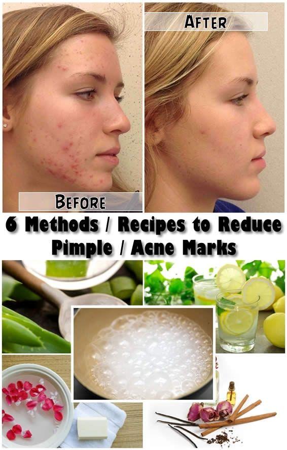 There are quite a few in-home skincare treatments you can use to decrease the appearance of acne scars on your skin, especially on your face. This great news means there are no more frustrating tri...