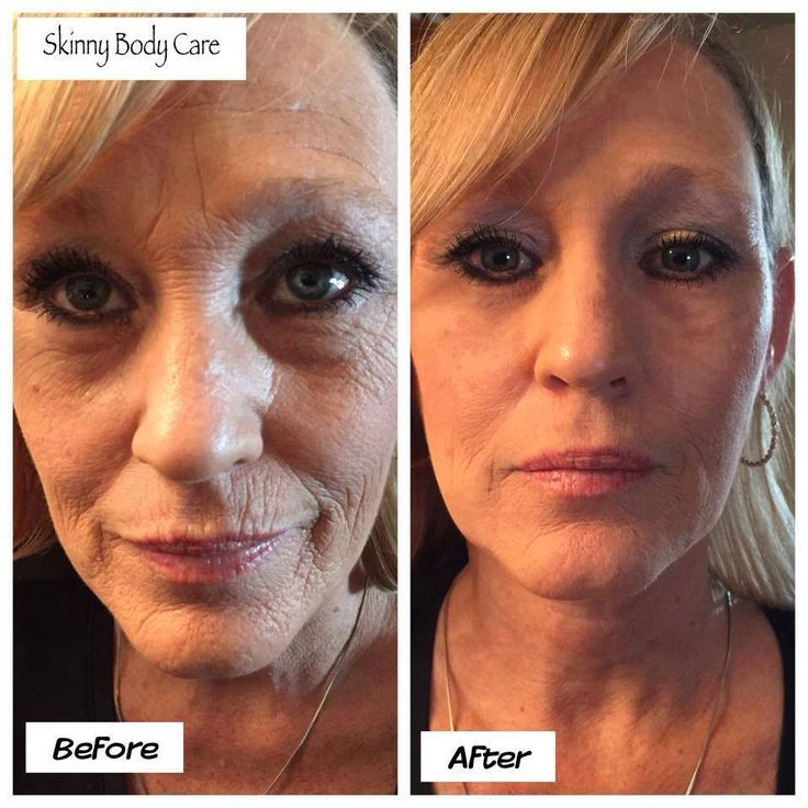 Michelle is a happy customer.... IY is shipping!! Want it?? ( I do... mine will be here Wednesday!!!!)And I am excited for it to arrive !! smile emoticon smile emoticon  Who doesnt like instant results for the products we use !!!! Well this is in 2 mins!!! THAT is right 2 MINS