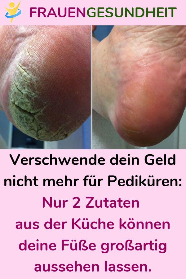 Verschwende dein Geld nicht mehr für Pediküren: Füße großartig aussehen lassen.
